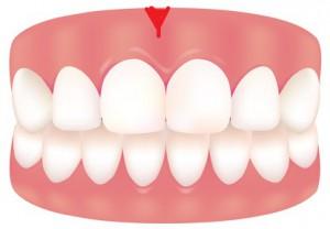 健康な歯と歯茎