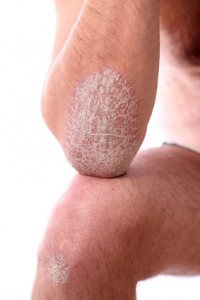 schuppenflechte - psoriasis an armen und beinen - nahaufnahme