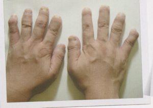 乾癬 関節 性 関節症性乾癬(PsA)